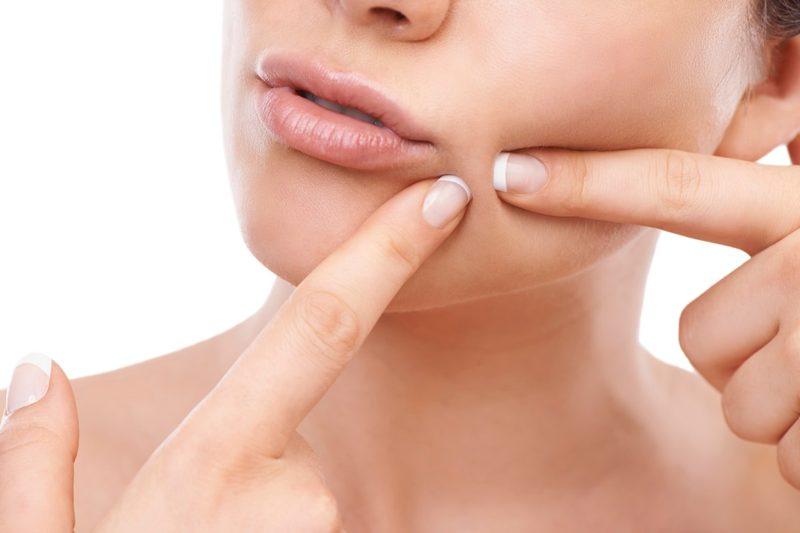 pimple-treatmentuk